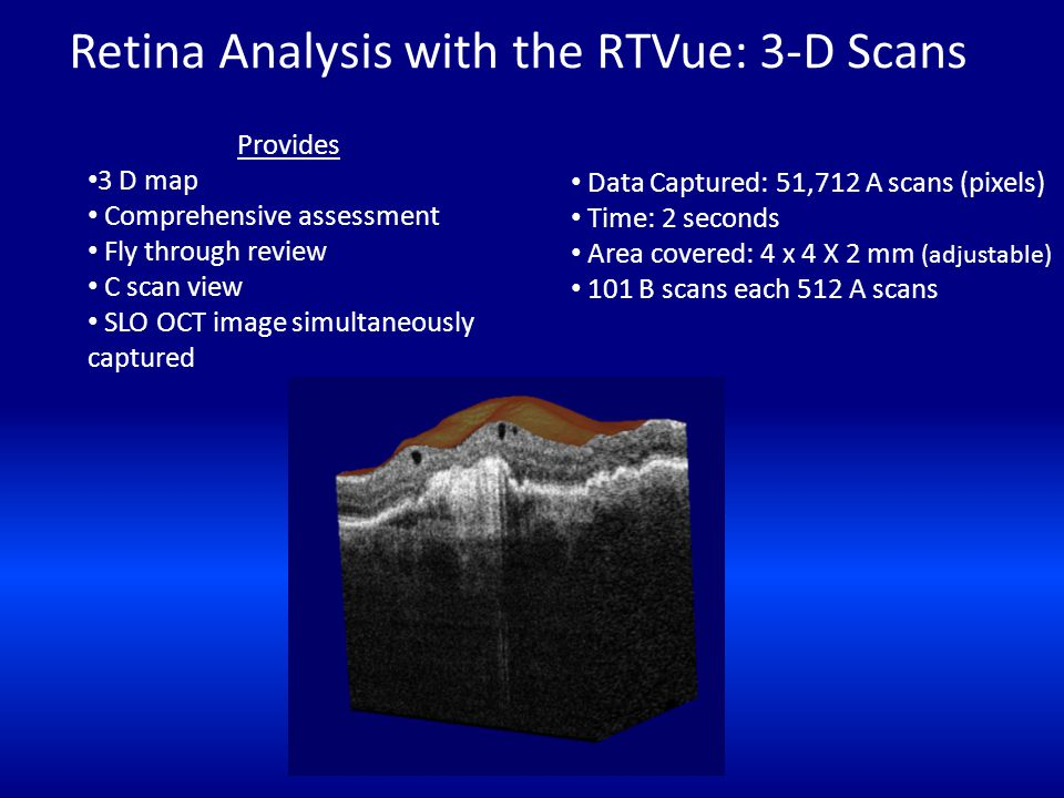 Retina Analysis with the RTVue: 3-D Scans