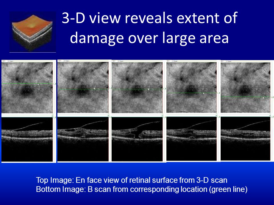 3-D view reveals extent of damage over large area