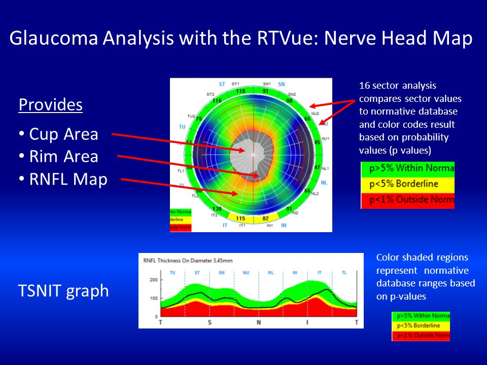 Glaucoma Analysis with the RTVue: Nerve Head Map