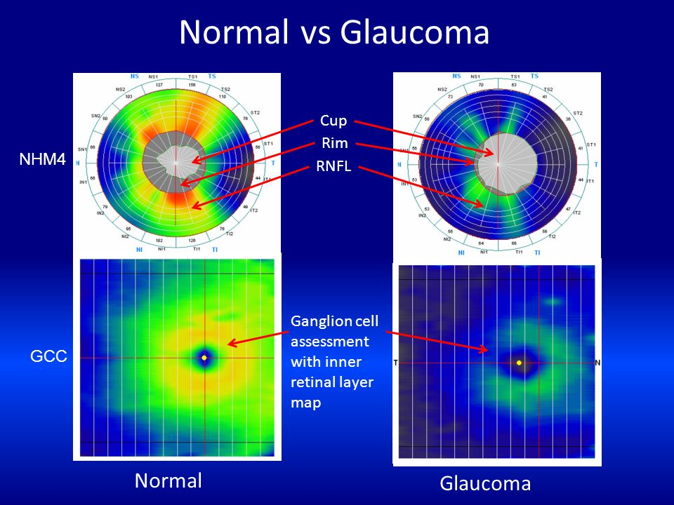 Normal vs Glaucoma Normal Glaucoma Cup Rim NHM4 RNFL