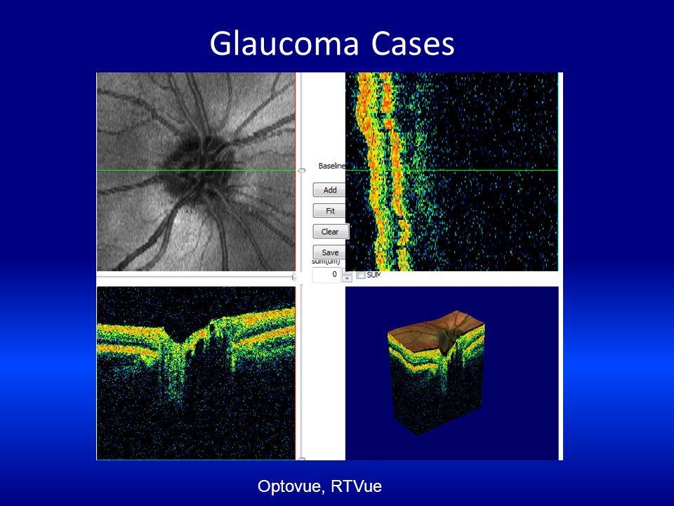 Glaucoma Cases Optovue, RTVue