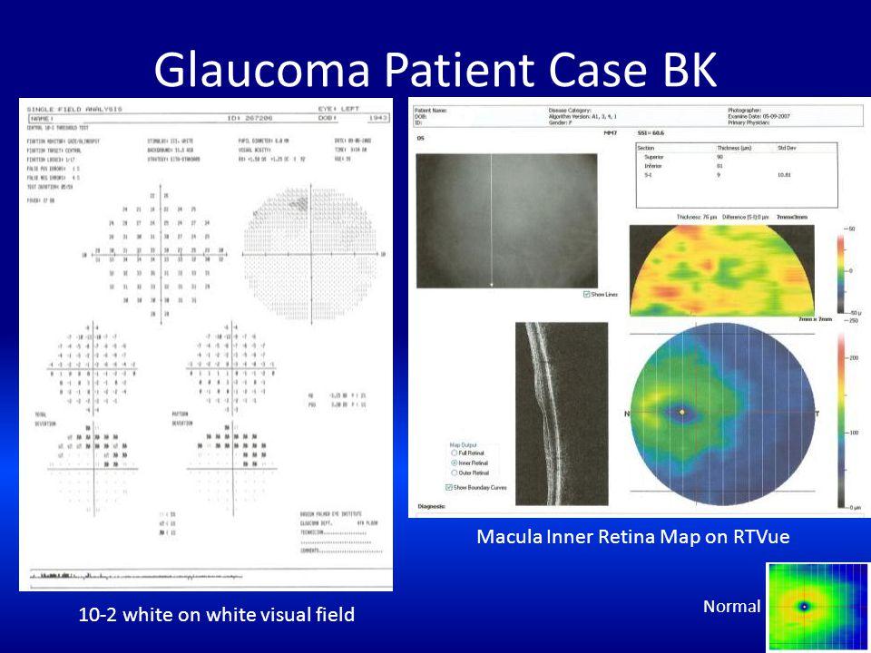 Glaucoma Patient Case BK