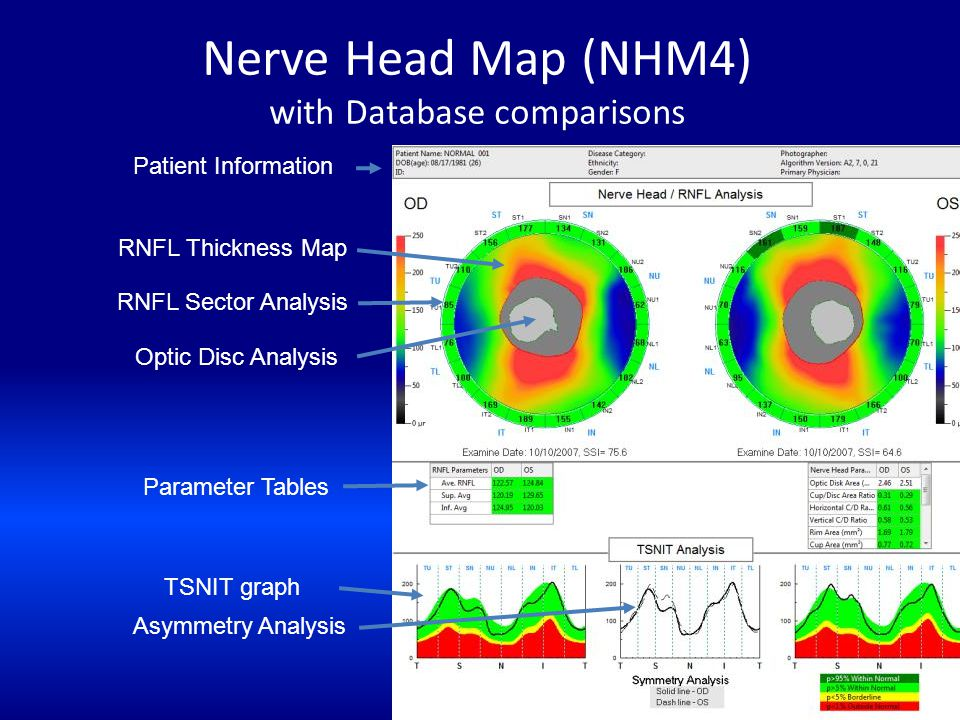 Nerve Head Map (NHM4) with Database comparisons