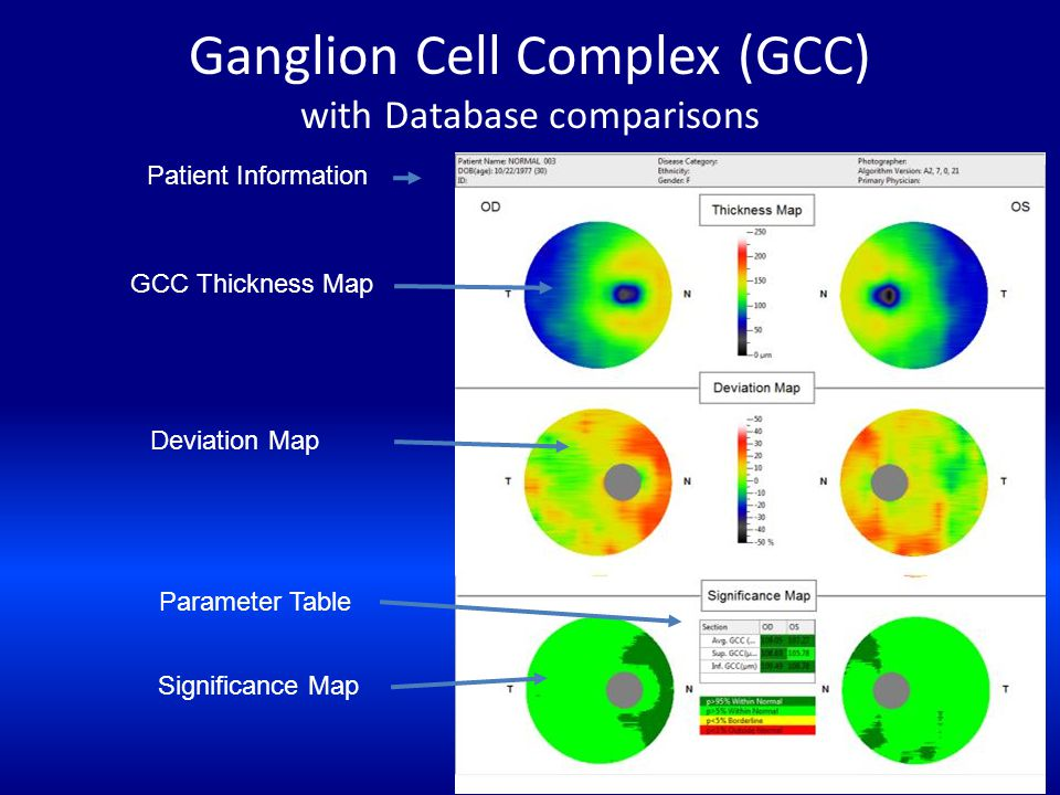 Ganglion Cell Complex (GCC) with Database comparisons