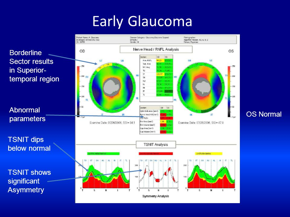 Early Glaucoma Borderline Sector results in Superior-temporal region