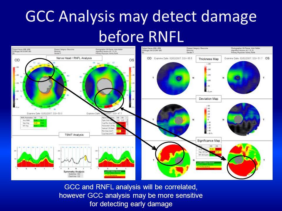 GCC Analysis may detect damage before RNFL