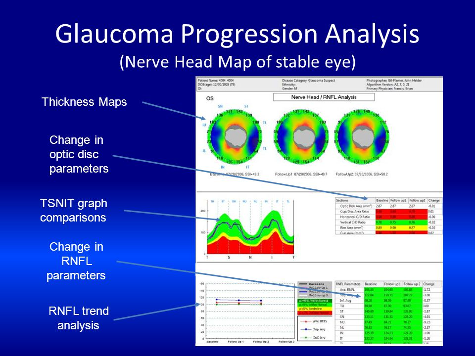 Glaucoma Progression Analysis (Nerve Head Map of stable eye)
