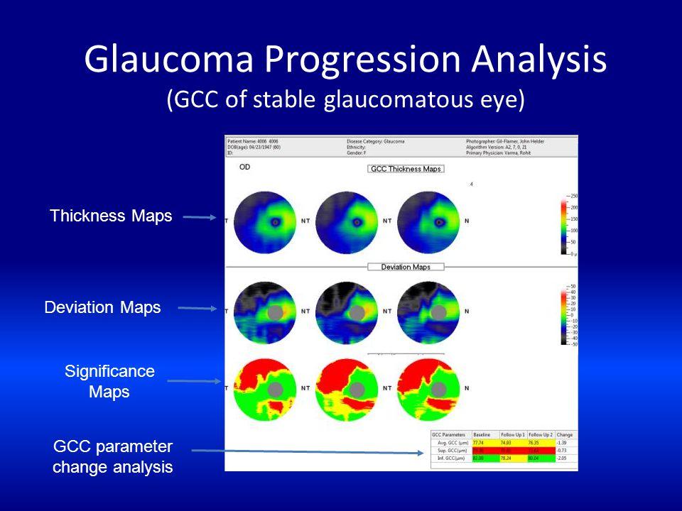 Glaucoma Progression Analysis (GCC of stable glaucomatous eye)