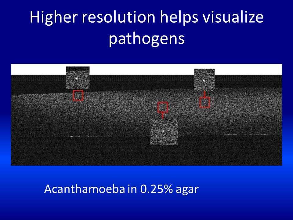 Higher resolution helps visualize pathogens