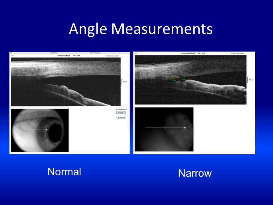Angle Measurements Normal Narrow