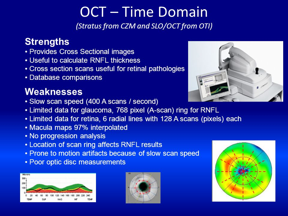 OCT – Time Domain (Stratus from CZM and SLO/OCT from OTI)