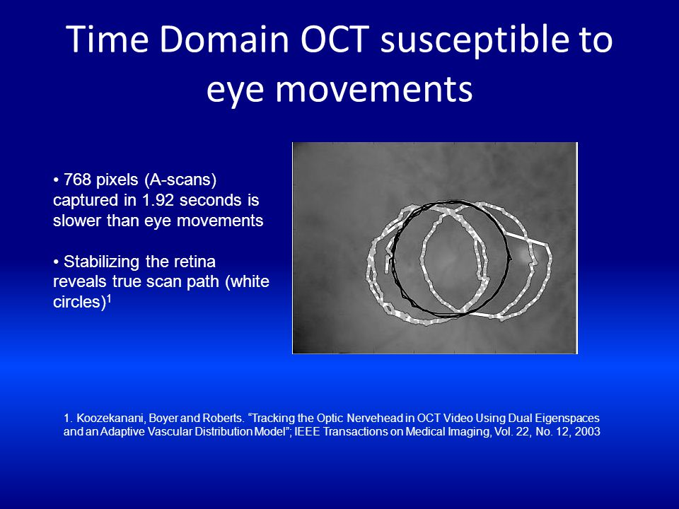 Time Domain OCT susceptible to eye movements