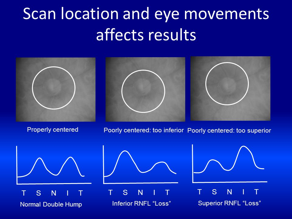 Scan location and eye movements affects results