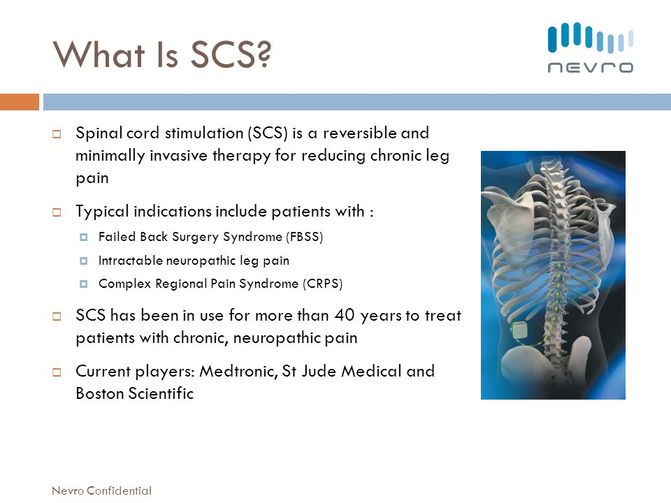 What Is SCS Spinal cord stimulation (SCS) is a reversible and minimally invasive therapy for reducing chronic leg pain.