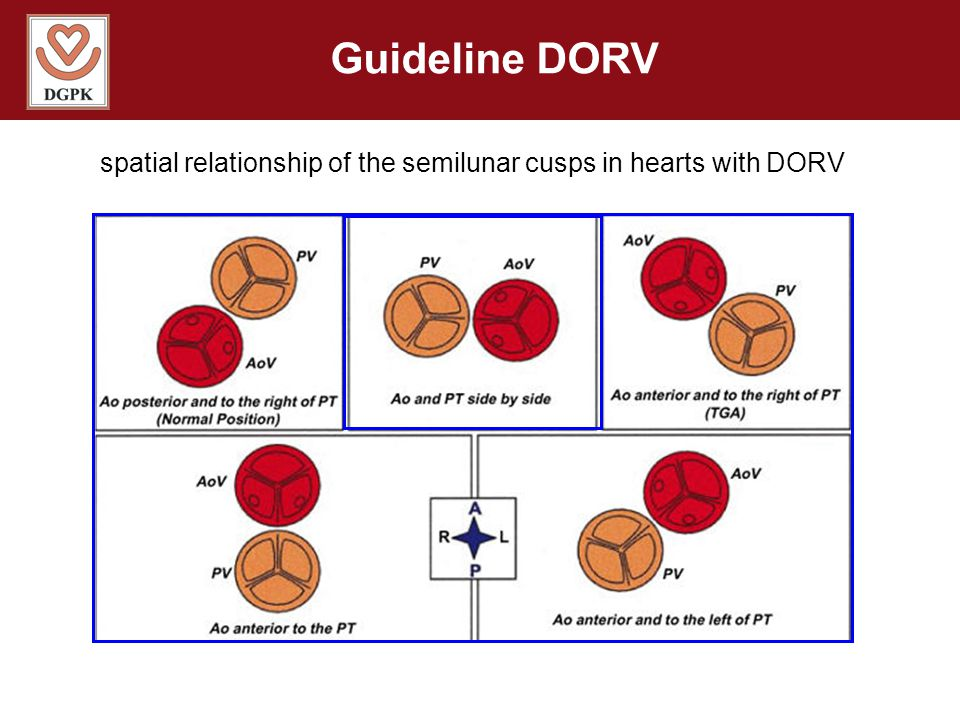 spatial relationship of the semilunar cusps in hearts with DORV