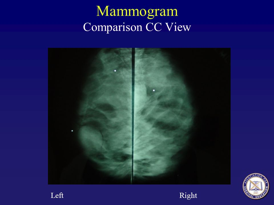 Mammogram Comparison CC View