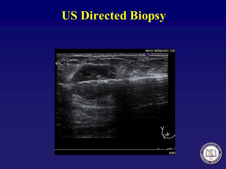 US Directed Biopsy