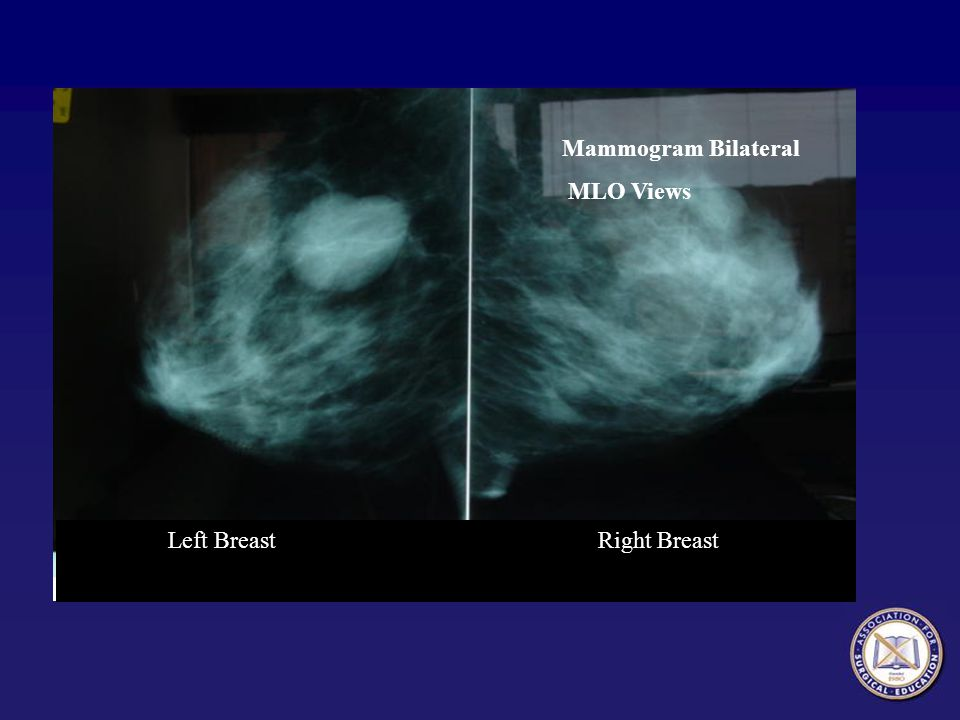 Mammogram Bilateral MLO Views Left Breast Right Breast