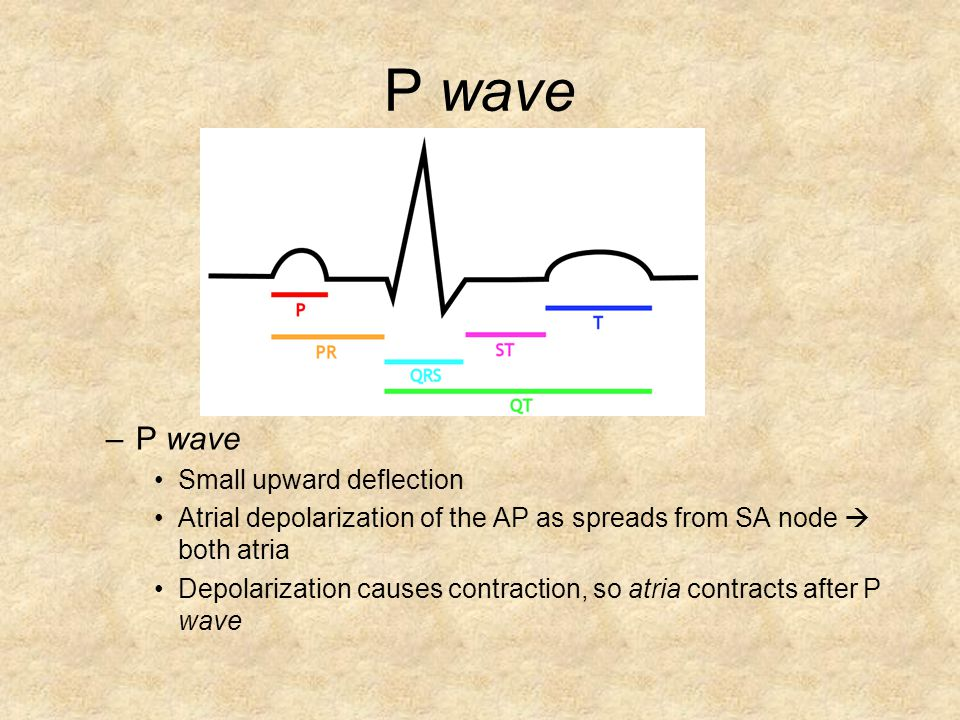 P wave P wave Small upward deflection