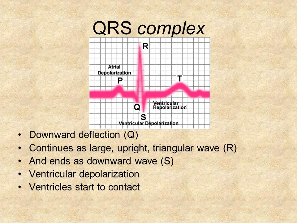 QRS complex Downward deflection (Q)