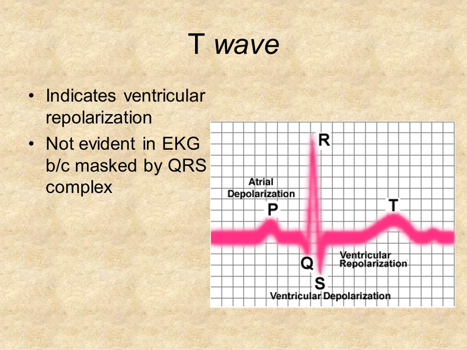 T wave Indicates ventricular repolarization