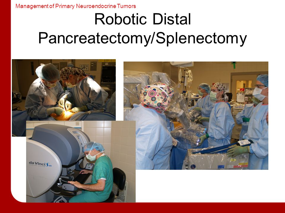Robotic Distal Pancreatectomy/Splenectomy