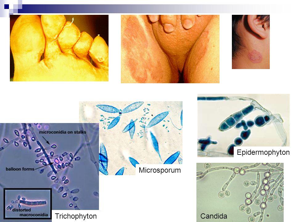 Epidermophyton Microsporum Trichophyton Candida