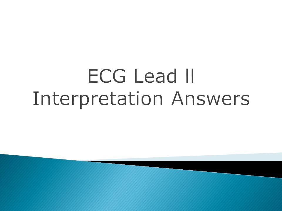 ECG Lead ll Interpretation Answers