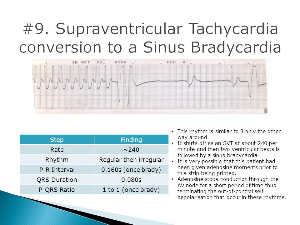 #9. Supraventricular Tachycardia conversion to a Sinus Bradycardia