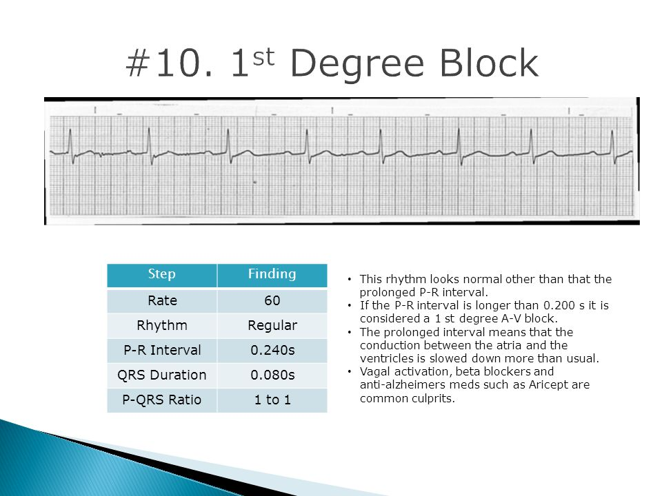 #10. 1st Degree Block Step Finding Rate 60 Rhythm Regular P-R Interval
