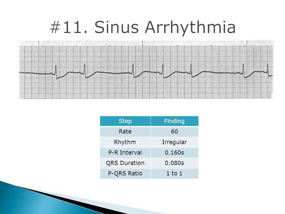 #11. Sinus Arrhythmia Step Finding Rate 60 Rhythm Irregular