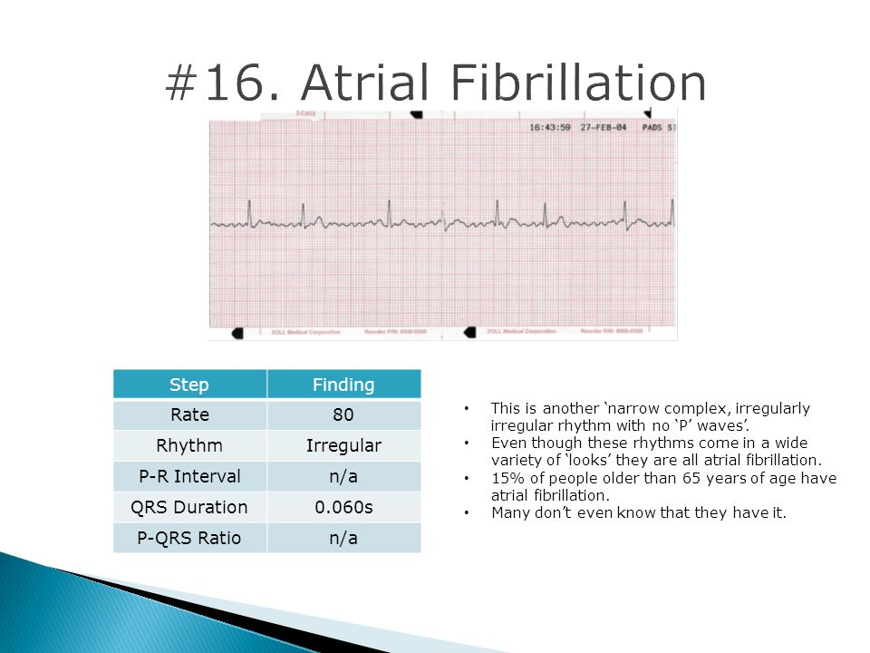 #16. Atrial Fibrillation Step Finding Rate 80 Rhythm Irregular