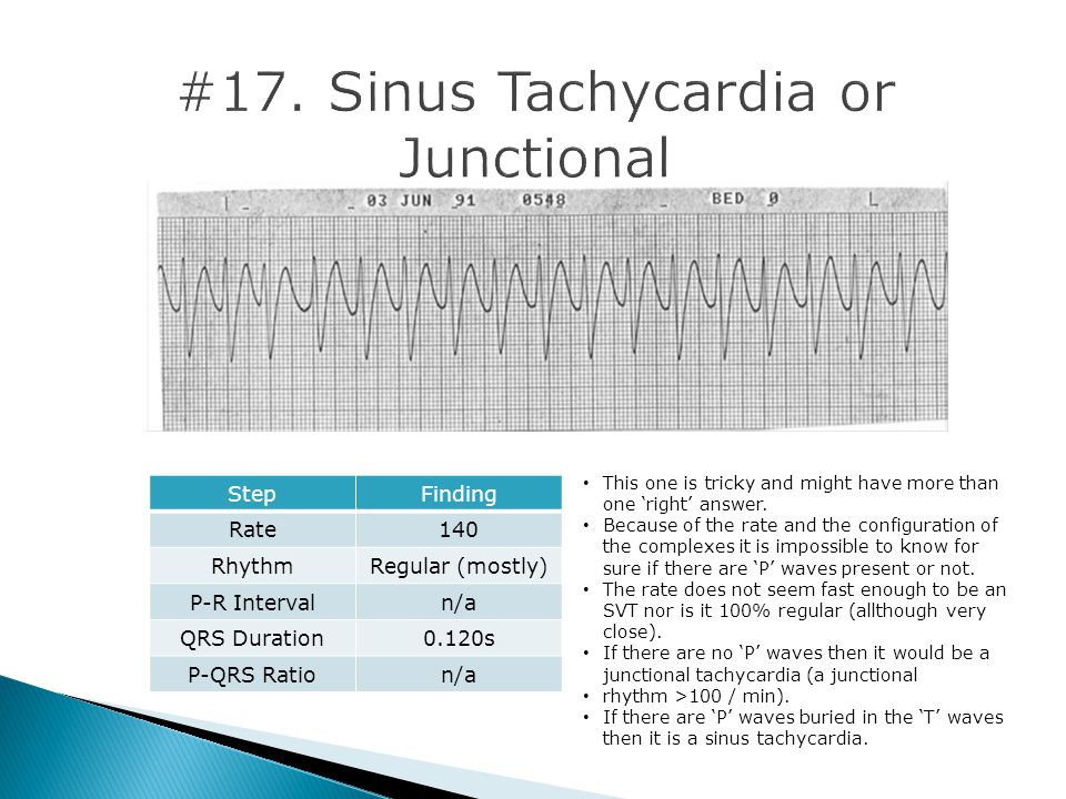#17. Sinus Tachycardia or Junctional