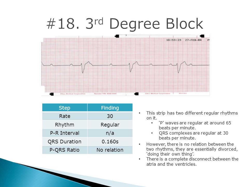 #18. 3rd Degree Block Step Finding Rate 30 Rhythm Regular P-R Interval