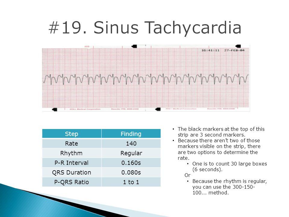 #19. Sinus Tachycardia Step Finding Rate 140 Rhythm Regular