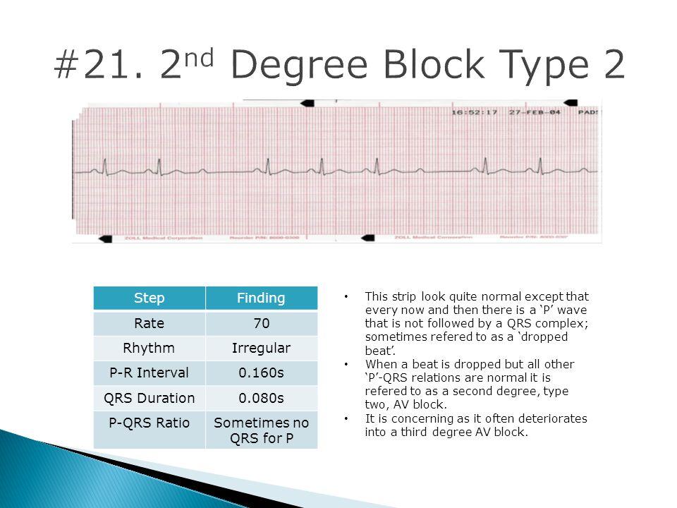 #21. 2nd Degree Block Type 2 Step Finding Rate 70 Rhythm Irregular