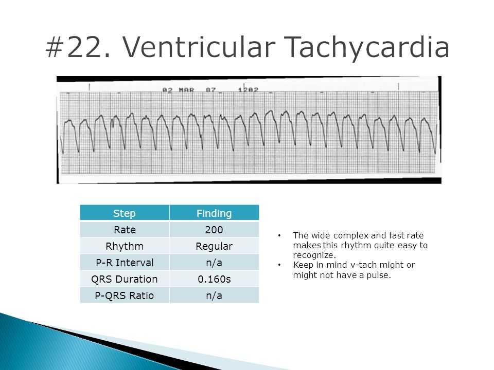 #22. Ventricular Tachycardia