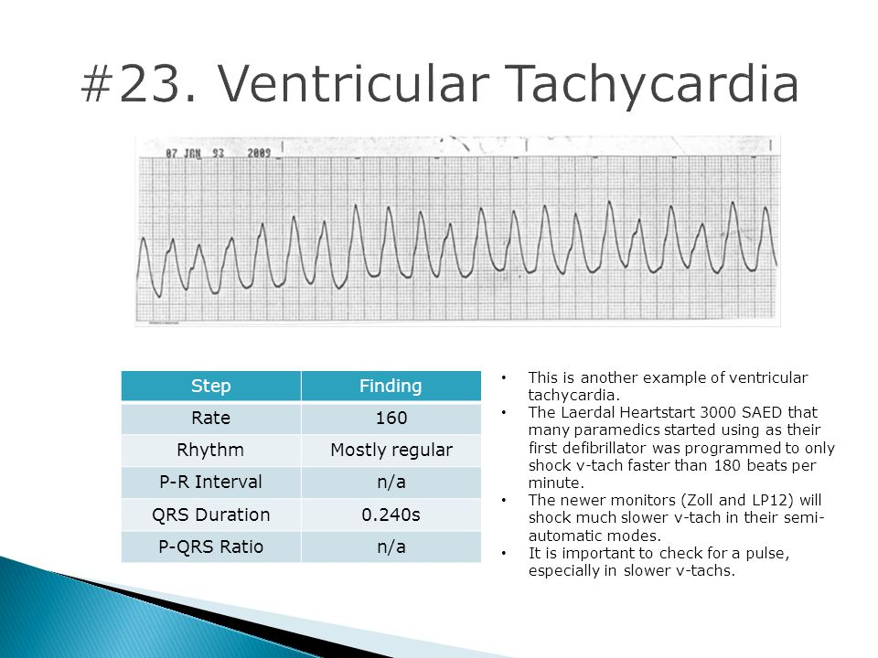 #23. Ventricular Tachycardia