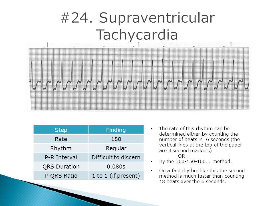 #24. Supraventricular Tachycardia