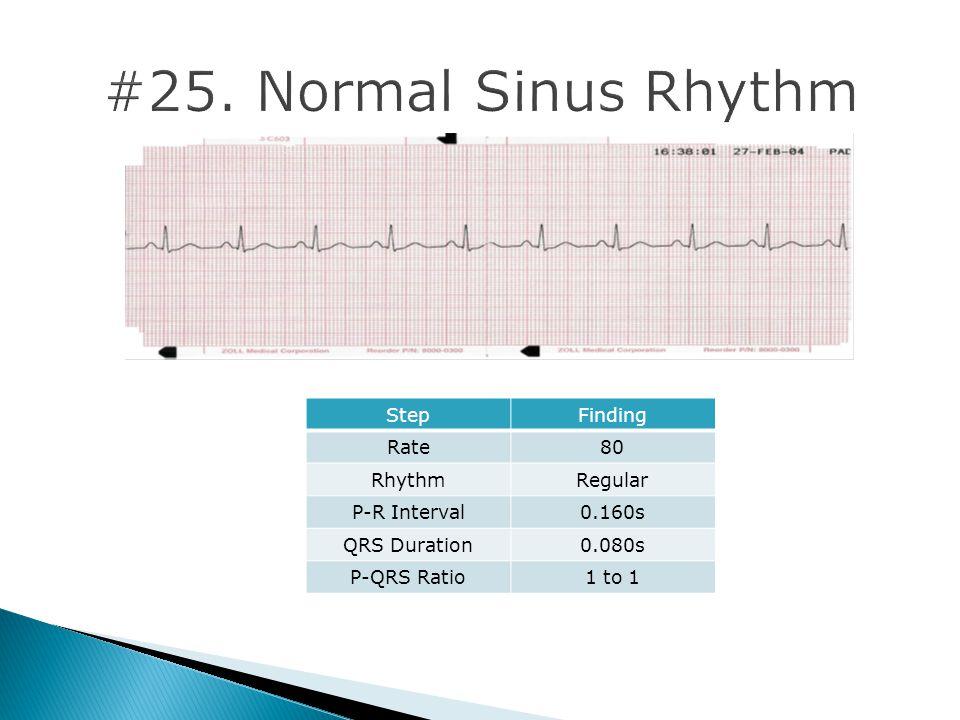 #25. Normal Sinus Rhythm Step Finding Rate 80 Rhythm Regular