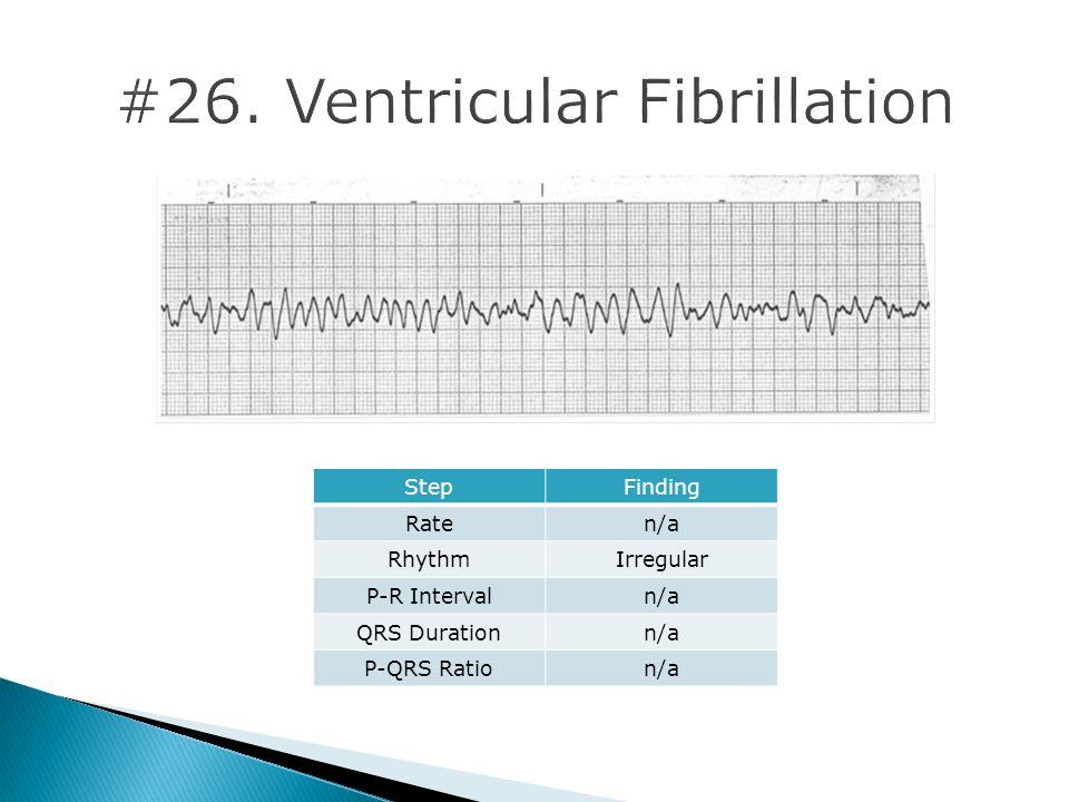 #26. Ventricular Fibrillation