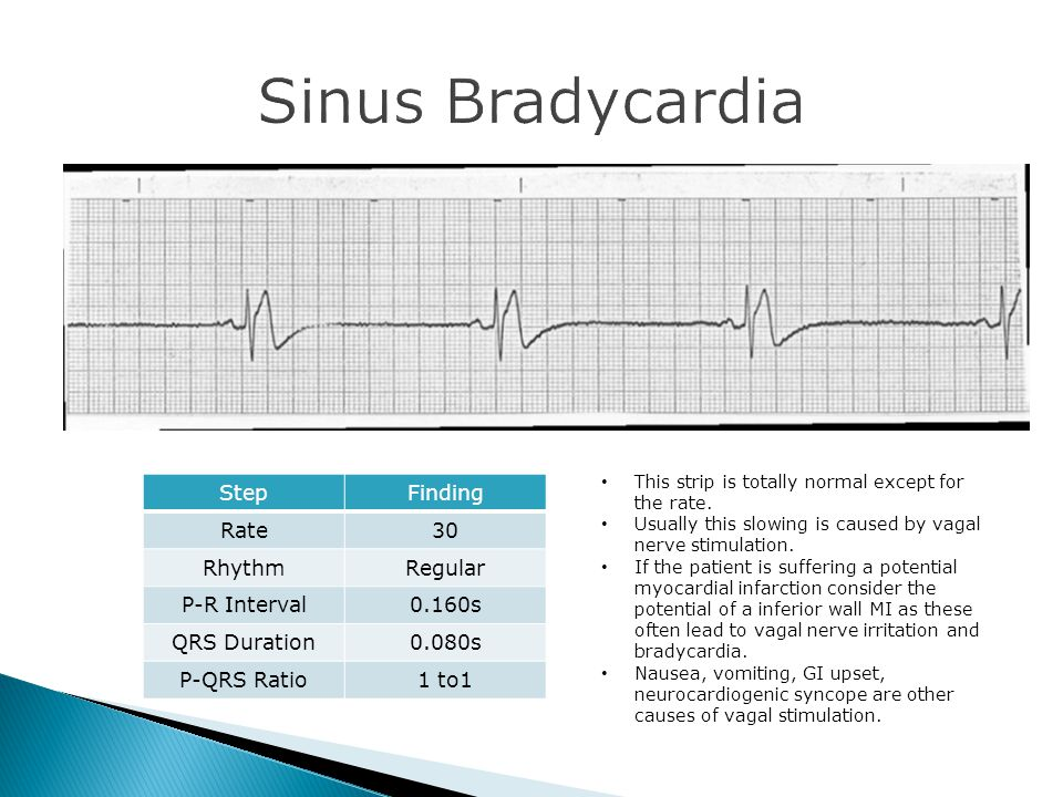 Sinus Bradycardia Step Finding Rate 30 Rhythm Regular P-R Interval