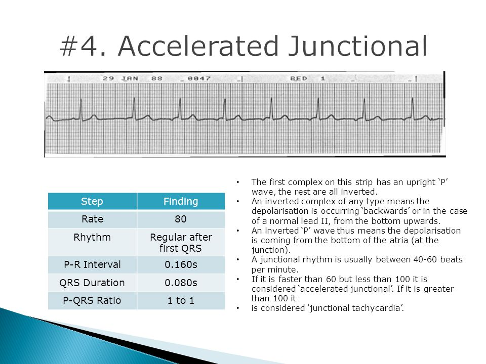 #4. Accelerated Junctional