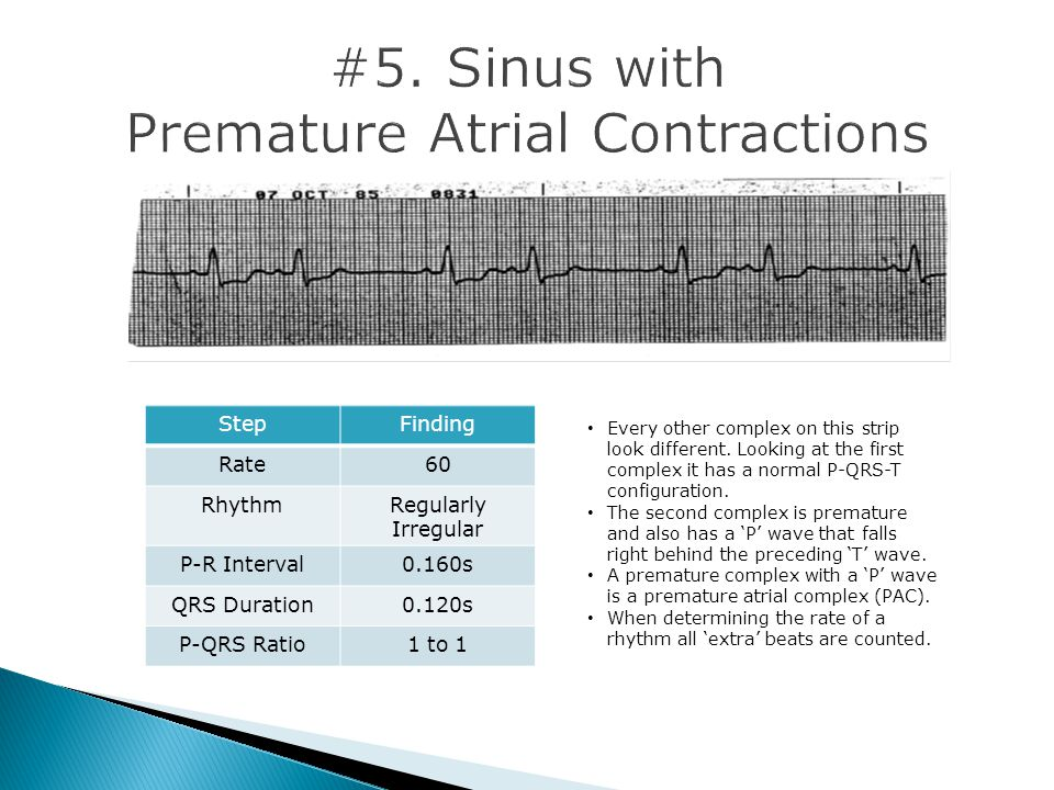 #5. Sinus with Premature Atrial Contractions