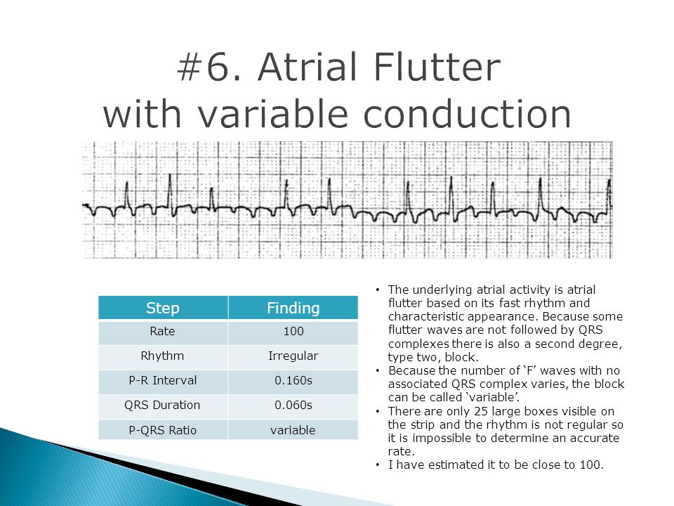 #6. Atrial Flutter with variable conduction