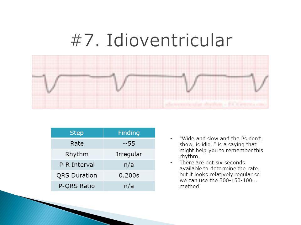 #7. Idioventricular Step Finding Rate ~55 Rhythm Irregular