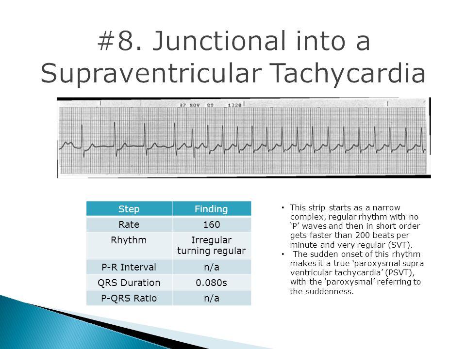 #8. Junctional into a Supraventricular Tachycardia