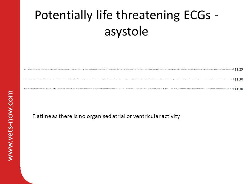 Potentially life threatening ECGs - asystole