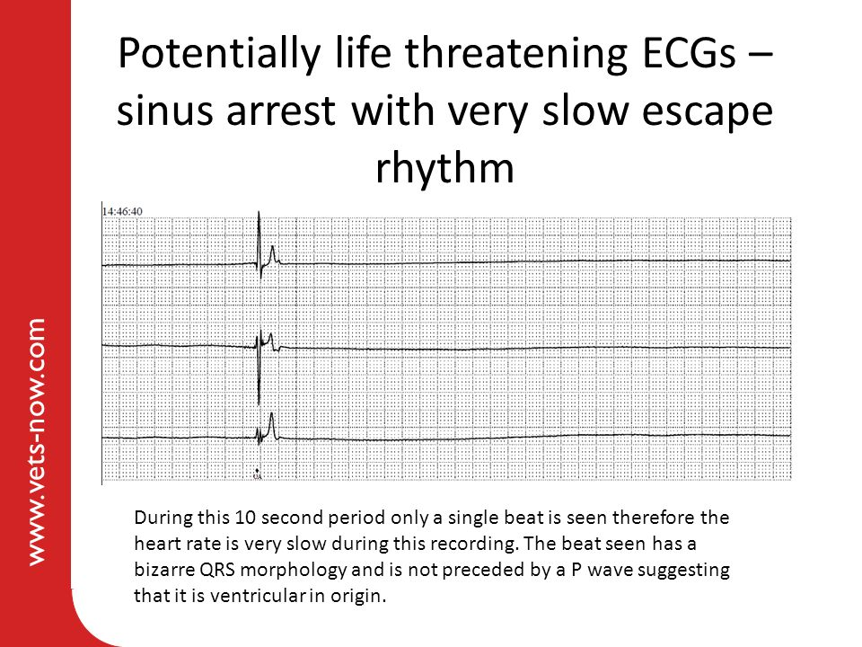 Potentially life threatening ECGs – sinus arrest with very slow escape rhythm