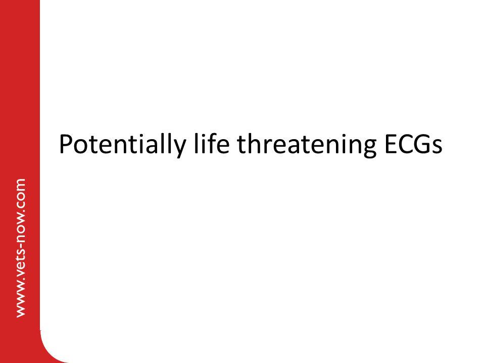 Potentially life threatening ECGs